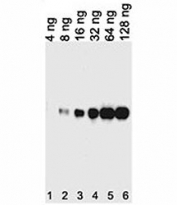 Tagged recombinant protein tested with anti-His antibody.