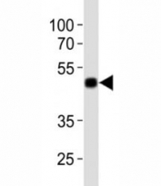 Western blot analysis of lysate from 12 tag recombinant protein using anti-His antibody at 1:1000.