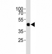 Western blot analysis of lysate from 12 tagged recombinant protein cell lines using HA antibody diluted at 1:1000.