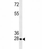 Anti-Bcl-2 antibody western blot analysis in HeLa lysate