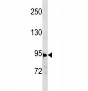 Anti-STAT3 antibody western blot analysis in A431 lysate. Predicted molecular weight ~88kDa.