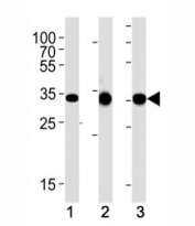 CCND1 antibody western blot analysis in (1) human A431, (2) mouse L929 and (3) rat C6 lysate. Predicted molecular weight: 32-36 kDa.