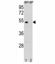 Western blot analysis of Cyclin B antibody pre-incubated without (Lane 1) and with (2) blocking peptide in K562 lysate. Predicted molecular weight: 48-60 kDa