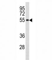 Western blot testing U251 lysate and CCNB1 antibody. Predicted molecular weight: 48-60 kDa