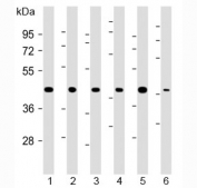 Western blot testing of 1) human 293, 2) human HeLa, 3) human MDA-MB-231, 4) rat H-4-II-E, 5) human HCT-116 and 6) mouse C2C12 cell lysate with TBP antibody at 1:2000. Expected molecular weight: 35-43 kDa.