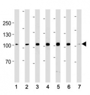 ACE2 antibody western blot analysis in (1) 293, (2) K562, (3) MCF-7, (4) SK-BR-3, (5) T47D, (6) MDA-MB-453 cell line and (7) mouse testis tissue lysate. Predicted molecular weight: 90-100 kDa.