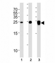 UCHL1 antibody western blot analysis in (1) 293T, (2) NCI-H1299 and (3) rat PC-12 lysate. Predicted molecular weight ~25 kDa.