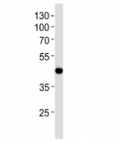 Western blot analysis of lysate from NCI-H292 cell line using AIM2 antibody at 1:1000. Predicted molecular weight 40-45 kDa.