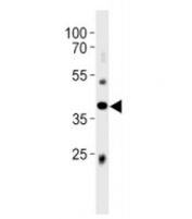 Abi3 antibody western blot analysis in mouse liver tissue lysate. Predicted molecular weight ~39 kDa.