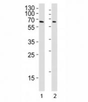 YY1 antibody western blot analysis in Daudi and U251 lysate. Predicted molecular weight 68/40 kDa.