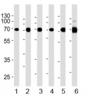 Acetylcholinesterase antibody western blot analysis in 1) human Raji, 2) human Jurkat, 3) human COS7, 4) mouse NIH3T3, 5) mouse cerebellum, and 6) rat cerebellum lysate. Predicted molecular weight ~68 kDa.