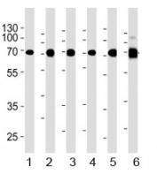 Acetylcholinesterase antibody western blot analysis in 1) human Raji, 2) human Jurkat, 3) human COS7, 4) mouse NIH3T3, 5) mouse cerebellum, and 6) rat cerebellum lysate. Predicted molecular weight ~68 kDa.