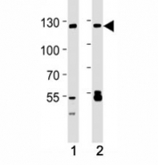 Western blot analysis of lysate from A549, 293 cell line (left to right) using SIRT-1 antibody; Ab was diluted at 1:1000 for each lane. Visualized from 80~120 kDa depending on post-translational modifications