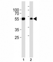 Western blot analysis of lysate from (1) A549 cell line and (2) rat liver tissue lysate using ALDH1A1 antibody diluted at 1:1000.