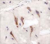 Immunohistochemical analysis of paraffin-embedded human brain using AURKA antibody at 1:25 dilution.