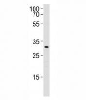 Western blot analysis of lysate from rat liver using Cebpb antibody. Ab was diluted at 1:1000. Predicted molecular weight: ~33/33/36kDa (rat/mouse/human).