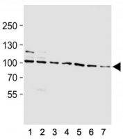Western blot analysis of lysate from (1) rat L6, (2) mouse NIH3T3, (3) T47D, (4) A2058, (5) HepG2, (6) K562, (7) HeLa cell line using HSP90 antibody at 1:1000.