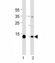 Western blot analysis of lysate from mouse 1) heart and 2) skeletal muscle tissue lysate using Myoglobin antibody at 1:1000 for each lane. Predicted molecular weight ~17 kDa.