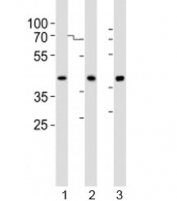 Western blot analysis of lysate from human 1) A431, 2) HepG2, and 3) liver lysate using ACADSB antibody at 1:1000. Predicted molecular weight ~47 kDa.