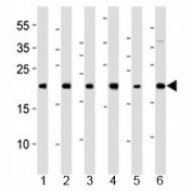 Western blot analysis of lysate from 1) HeLa, 2) 293, 3) HT-1080, 4) Raji, 5) SH-SY5Y and 6) THP-1 cell line using BAX antibody at 1:1000.