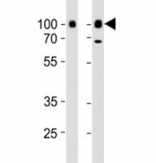 Western blot analysis of lysate from Daudi, Raji cell line (left to right) using CD19 antibody diluted at 1:1000 for each lane. It is a glycoprotein visualized between 60~100 kDa.