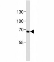 Western blot analysis of lysate from HeLa cell line using CD30 antibody diluted at 1:1000. Predicted molecular weight: 53-120 kDa depending on glycosylation level.
