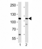 Western blot analysis of lysate from 1) human LNCaP cell line and 2) mouse lung tissue using PRDM16 antibody at 1:1000.