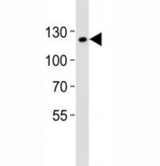 Western blot analysis of lysate from mouse F9 cell line using SIRT1 antibody at 1:1000. Predicted molecular weight ~80kDa but is routinely observed at 110~120kDa due to post-translational modification.