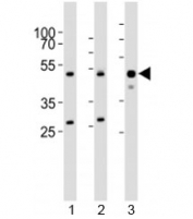Western blot testing of 1) human HeLa, 2) mouse NIH3T3, and 3) mouse skeletal muscle lysate with BAF53A antibody at 1:1000. Expected molecular weight: 47-53 kDa.