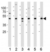 Western blot testing of 1) human HeLa, 2) human K562, 3) human Ramos, 4) mouse NIH3T3, 5) rat PC-12 and 6) human testis lysate with ACTL6A antibody at 1:1000. Expected molecular weight: 47-53 kDa.