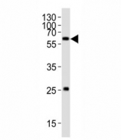 Western blot analysis of lysate from HT-1080 cell line using SMAD1 antibody; Ab was diluted at 1:1000. Predicted molecular weight: 52~60 kDa.