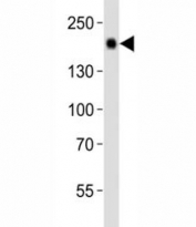 Western blot analysis of lysate from mouse liver tissue using Egfr antibody diluted at 1:1000. Expected molecular weight: ~134/170 kDa (unmodified/glycosylated).