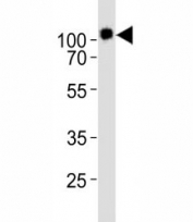 Western blot analysis of lysate from KG-1 cell line using CD34 antibody diluted at 1:1000. Expected size is 40~110 kDa depending on glycosylation level.