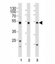Western blot analysis of lysate from (1) HepG2, (2) HT-29, and (3) SW620 cell line using FOXA2 antibody at 1:1000. Predicted molecular weight: 50 kDa.