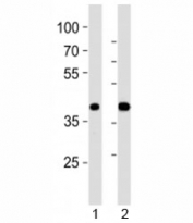 Western blot analysis of lysate from 1) mouse pancreas and 2) rat pancreas tissue using PDX1 antibody at 1:1000. Observed molecular weight 31/40~46kDa (unmodified/modified).