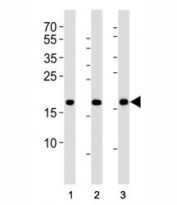 Western blot analysis of lysate from HepG2, NCCIT, mouse NIH3T3 cell line (left to right) using HMGA2 antibody; Ab was diluted at 1:1000 for each lane. Predicted molecular weight ~12kDa but routinely observed at ~18kDa.