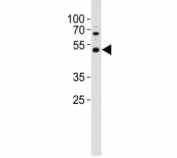 Western blot analysis of lysate from HepG2 cell line using PAX6 antibody; Ab was diluted at 1:1000. Predicted molecular weight ~48kDa.