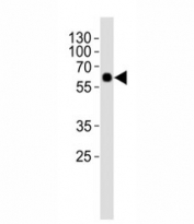 Western blot analysis of lysate from rat lung tissue using SMAD1 antibody at 1:1000. Predicted molecular weight: 52~60 kDa.