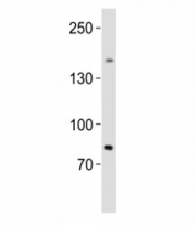 Western blot analysis of lysate from human testis tissue lysate using SALL4 antibody diluted at 1:1000. Isoform A molecular weight: 112~165 kDa, Isoform B molecular weight: 65~95 kDa.