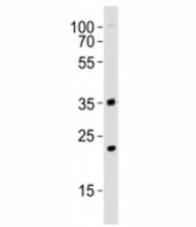 Western blot analysis of lysate from mouse NIH3T3 cell line using WDR5 antibody at 1:1000. Predicted molecular weight ~36 kDa.