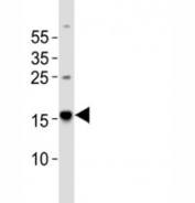 Western blot analysis of lysate from human brain tissue using Map1lc3a antibody diluted at 1:1000.
