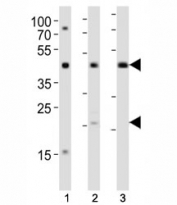 Western blot analysis of lysate from (1) K562, (2) L929 cell line and (3) rat lung tissue using TGFB1 antibody diluted at 1:1000. Predicted molecular weight: 44-50 kDa (precursor), ~25 kDa (active form).