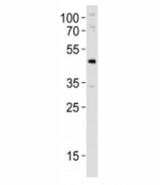 Western blot analysis of lysate from mouse pancreas tissue lysate using Pdx1 antibody at 1:1000. Observed molecular weight 31/40~46kDa (unmodified/modified).