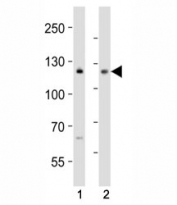 Western blot analysis of lysate from (1) MCF-7 and (2) Jurkat cell line using NOTCH antibody at 1:1000. Predicted molecular weight: ~ 270 kDa (full length), ~ 120 kDa (transmembrane fragment).