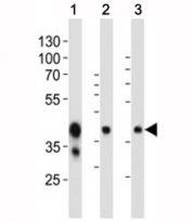 Western blot analysis of mouse tissue lysate using EpCAM antibody at 1:1000. Expected molecular weight: ~35 kDa (unmodified), 40-43 kDa (glycosylated).