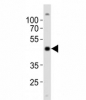 Western blot analysis of lysate from NCCIT cell line using POU5F1 antibody at 1:1000. Predicted molecular weight ~38/30kDa (isoform A/B).