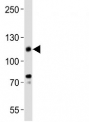 Western blot analysis of lysate from KG-1 cell line using anti-CD34 antibody.  Expected size is 40~110 kDa depending on glycosylation level.