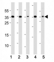 Western blot analysis of lysate from (1) A549, (2) HeLa, (3) HepG2, (4) Jurkat, (5) mouse NIH3T3 cell line using DKK1 antibody. Predicted molecular weight: 26-40 kDa depending on glycosylation level.