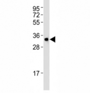 Western blot testing of Atg5 antibody at 1:1000 dilution + HT-1080 lysate. ATG5: ~32 kDA; ATG5/ATG12 heterodimer: ~56 kDa