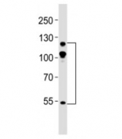 Western blot testing of ABL2 antibody at 1:500 dilution + mouse NIH3T3 lysate; Expected molecular weight ~128 kDa, but routinely observed at 128-140 kDa with a possible ~61 kDa isoform.